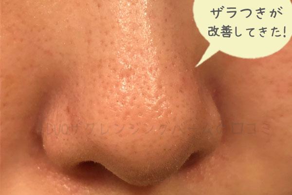 黒デュオを2週間使用した鼻の角栓・汚れの状態
