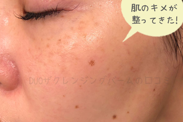 黒デュオを2週間使用した肌の状態