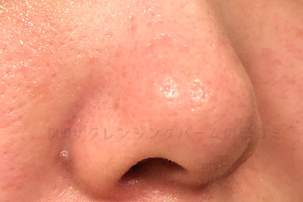 黒デュオを1ヶ月使用した肌の状態